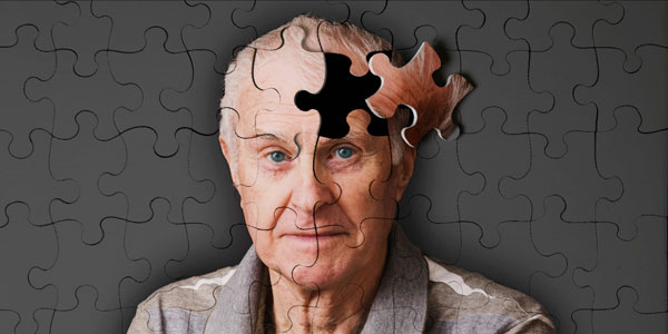 Alzheimer Hastalığı Hemşirelik Bakım Planı