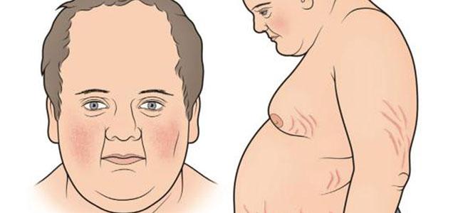 cushing hastalığı