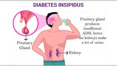 Diyabet insipidus ve Hemşirelik Bakımı