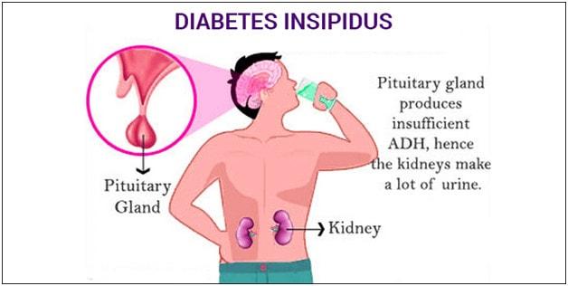 Diyabet insipidus Hemşirelik Bakım Planı