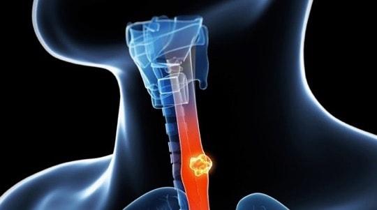 özofagus kanseri