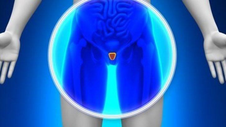 Prostat Kanseri ve Hemşirelik Bakımı