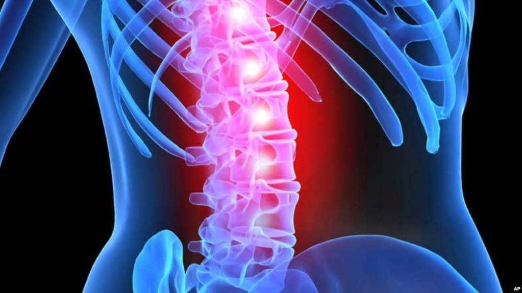 spinal kord zedelenmeleri