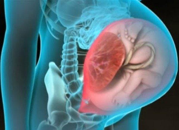 uterus rüptürü