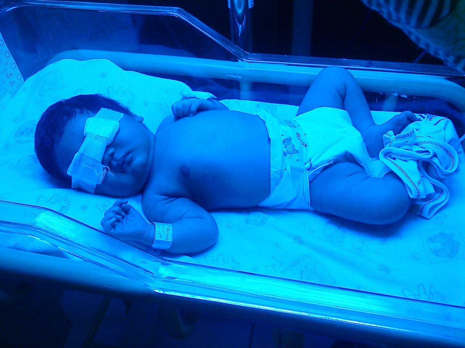 yenidoğan bebeklerde fototerapi