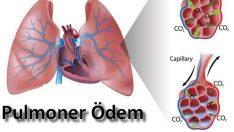 Pulmoner ödem ve hemşirelik bakımı